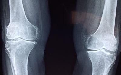 Comment reprendre l'entrainement après un arrêtou une blessure ?